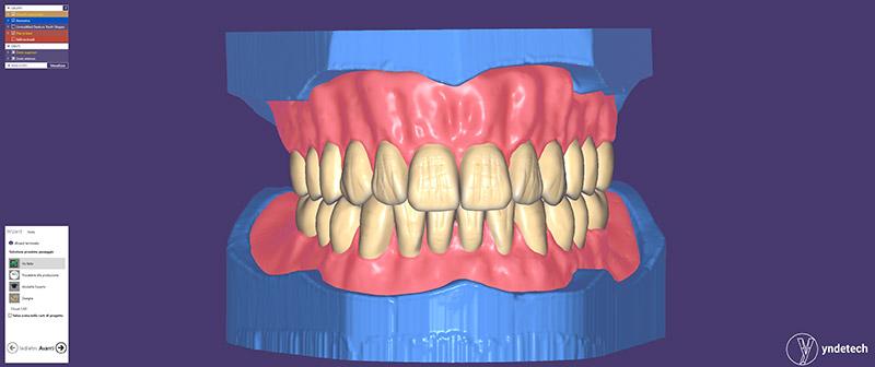 exocad plovdiv modulo full denture
