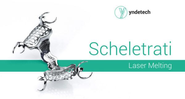 scheletrato in laser melting yndetech